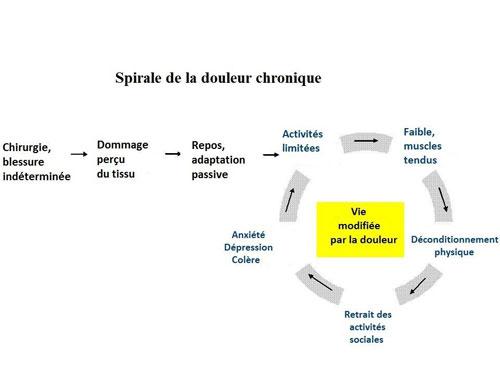 spirale de la douleur chronique